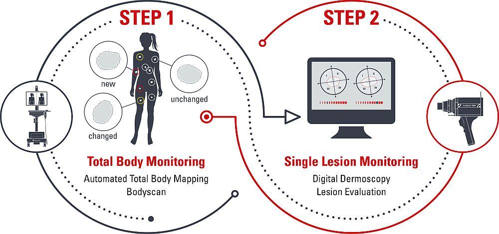 2_Step_Method_CR FotoFinder Systems